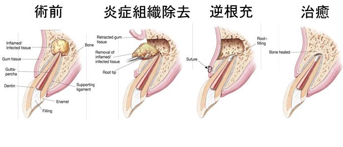 細菌に侵された歯の神経を取り除いても、細菌が根管内に残留して、歯茎がはれたり、膿が出てくる状態になってしまうことがあります。こうした状態を根尖性歯周炎といいます。 根尖性歯周炎が通常の根管治療を行なっても治らない時に、外 […]